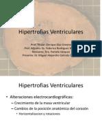 20110301_hipertrofias_ventriculares_miguel_galindo.ppt