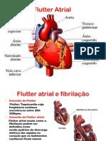 Flutter-Atrial.pdf