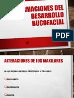 MALFORMACIONES DEL DESARROLLO BUCOFACIAL.pptx