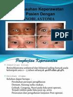 Pp Persepsi Retinoblastoma