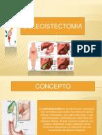 COLECISTECTOMIA CON IMAGENES.pptx terminada (1).pptx