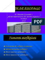 cancer de esofago.ppt