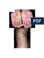 Dermatits
