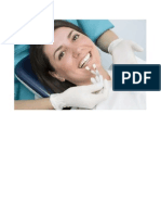 Dental Implant Cost in Chennai