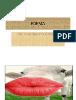 EDEMA2003.ppt