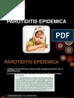 PAROTIDITIS EPIDEMICA.ppt