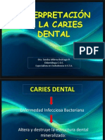 0 clase CARIES_DENTAL.pptx