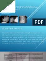 TOMOGRAFIA COMPUTADORIZA aula final.pdf