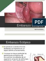 Embarazo Ectopico (GOlll).pptx