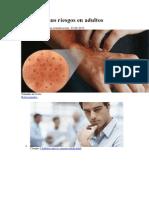 Varicela y sus riesgos en adultos.docx