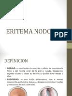 ERITEMA NODOSO.pptx
