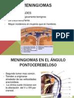 Meningiomas.pptx