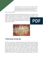 Karang gigi atau kalkulus.docx