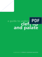 Syndrome Cleft Lip and Palate