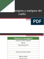 Tumores benignos y malignos de cuello.pptx