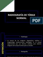 torax.pptx