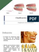Clasificación de Angle.pptx