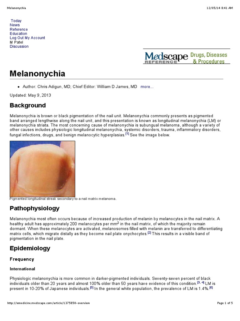 Medscape - Melanonychia | Dermatology | Doctor Of Medicine