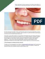 Blanqueamiento dental natural