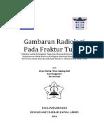 Referat Fraktur Radiologis Edit