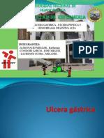 ulceras gastricas RREGLADO.pptx