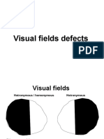 Field Defects