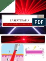 laser.pptx