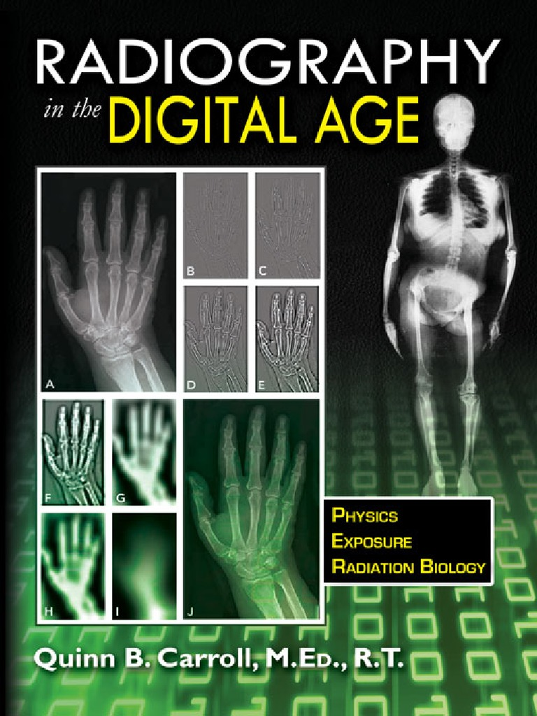 Radiography in the digital age q carroll c thomas 2011 bbs radiography in the digital age q carroll c thomas 2011 bbs chemical bond medical imaging fandeluxe Choice Image