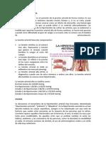 Hipertension.docx