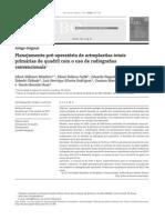Planejamento pre-operatório de artroplastias totais primárias de quadril com o uso de radiografias convencionais.pdf