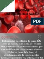 LEUCEMIA LINFOBLÁSTICA AGUDA.pptx