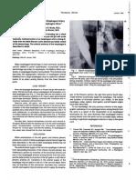 Embolizacion Esofagica Arterial