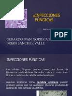 Infecciones fungicas.pptx