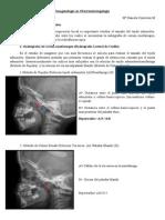 ADENOIDES.pdf