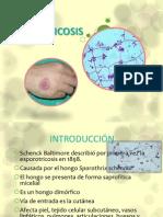 Esporotricosis.pptx