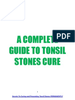 A Complete Guide to Tonsil Stones Cure