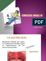 CIRUGIA ORAL II.pptx
