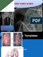 Famakoterapi II Kanker Paru-paru.pptx