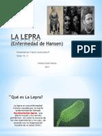 LA LEPRA.pptx