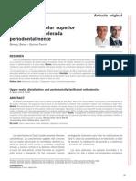 distalizacion  corticotomia.pdf