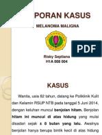 Laporan Kasus Melanoma Maligna