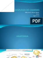 Expo INSN Displasia de Cadera