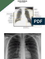 Radiologi Thoraks Normal