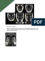 TC de cranio e RNM