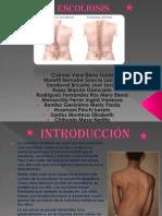 diapositivas de la escoliosisss.pptx