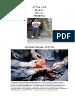 Transplantasi Jantung