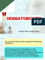 Dermatomiositis Final