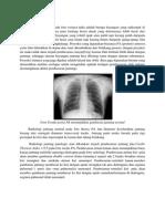 DISKUSI RADIOLOGI hydropneumothorax