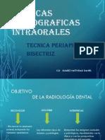 04 Tecnica Radiografica de La Bisectriz (1)