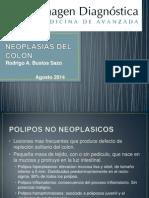 Neoplasias Del Colon Rodrigo